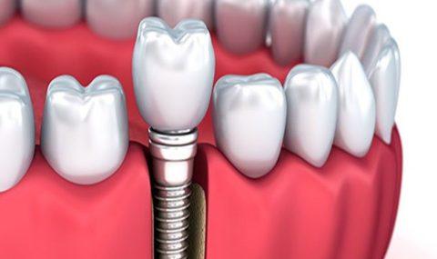 implant.jpg1